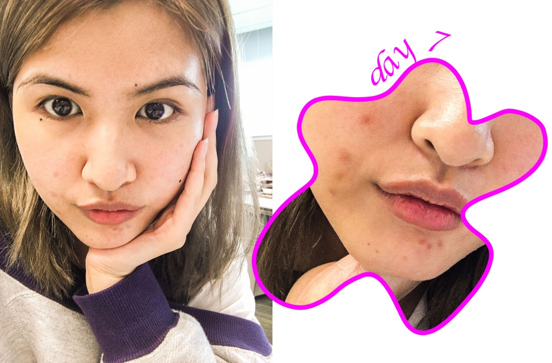 I Went on a Skincare Diet and This is What Happened