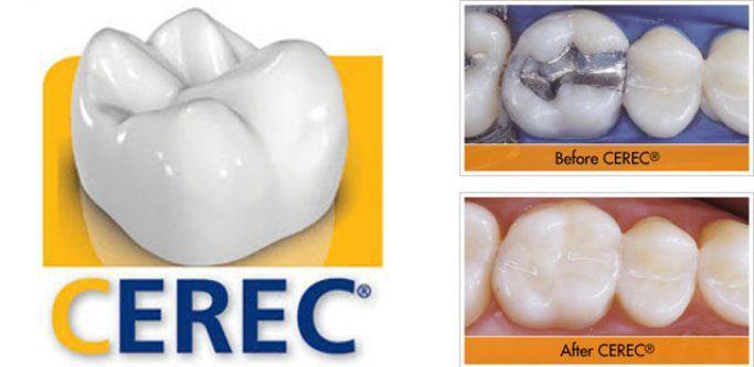 cerec-before-after