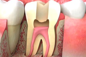 root canal specialist amarillo tx