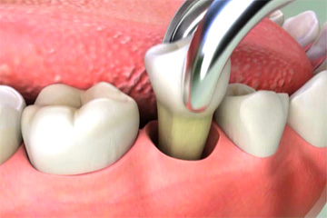 tooth-extraction-dentist-amarillo-tx