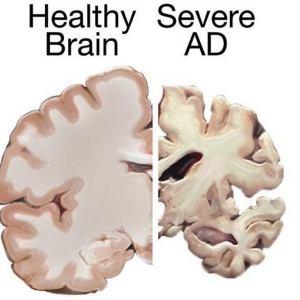 Approval for Alzheimer's Drug