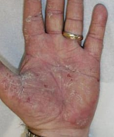 A male hand, palm up, showing the effects of dermatitis caused by work