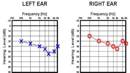 Audiograms for noise-induced hearing loss
