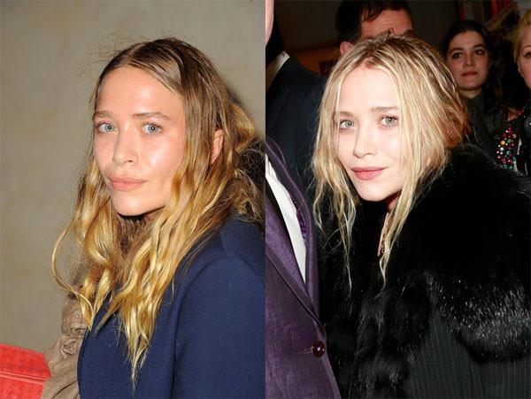 Больше не близнецы: Мэри-Кейт Олсен до и после пластики (Фото)