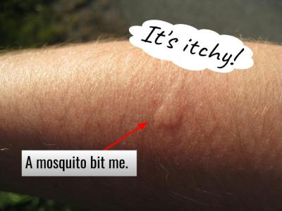 A mosquito bit me