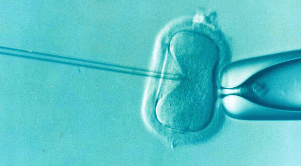 Get your health checkup done before IVF