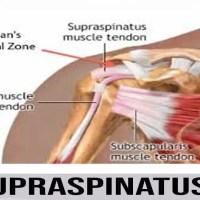 мускул супраспинатус