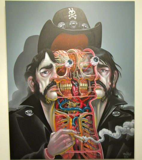 Dissection of Lemmy