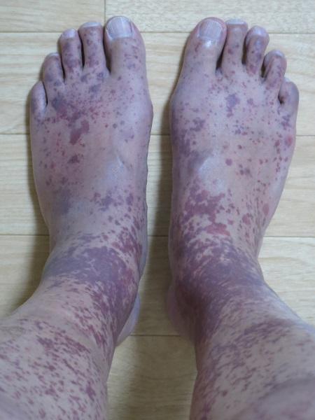 アナフィラ クト イド 紫斑 病 画像