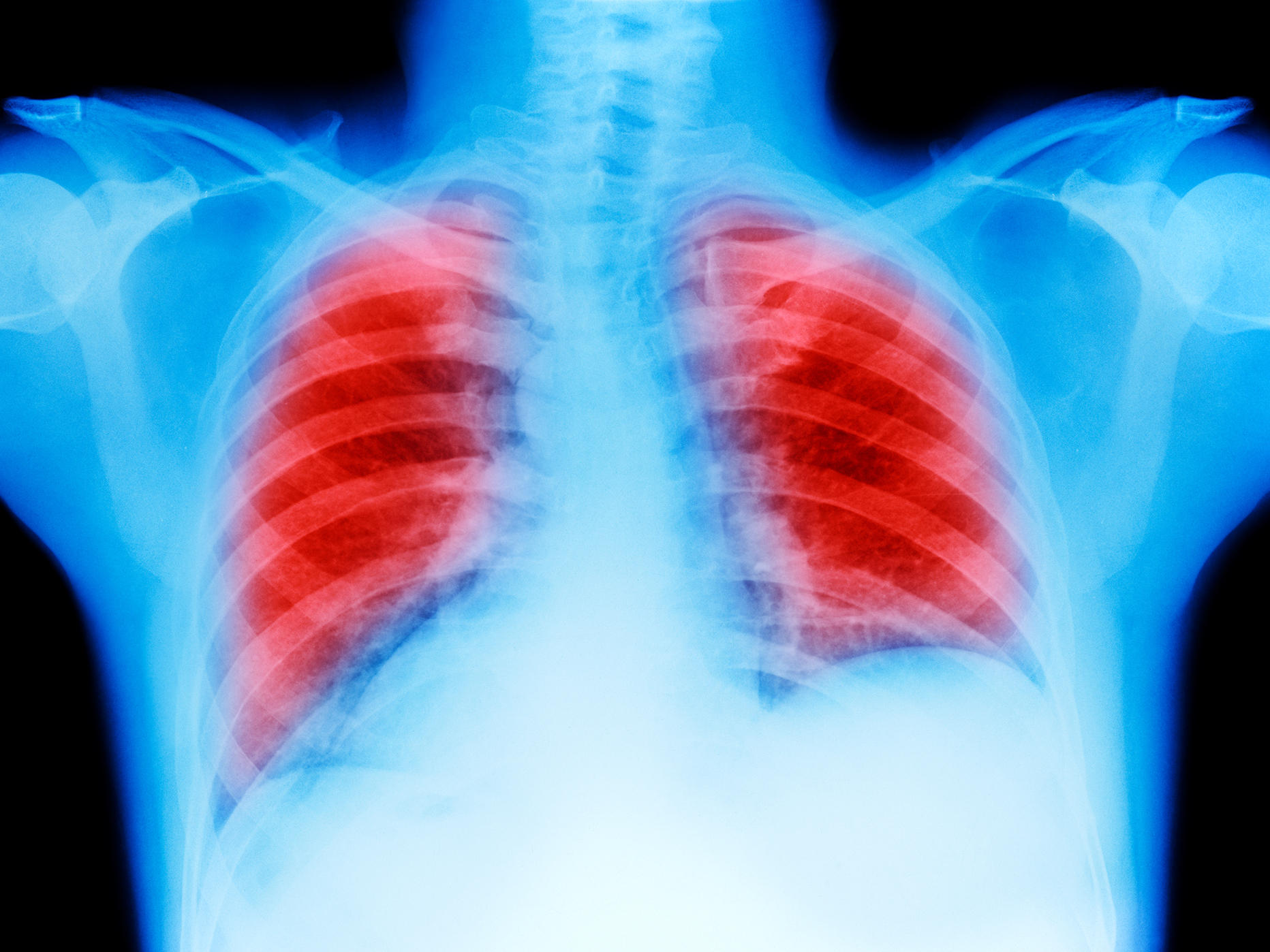 lung-cancer-01