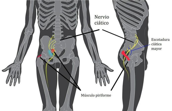 remedios caseros para desinflamar el nervio ciático