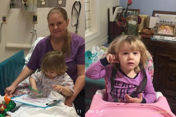 The toddler finally got ear surgery in February. She is starting to make intelligible sounds, and we hope she will start talking soon. But even this week she continues indicating discomfort in her ear.