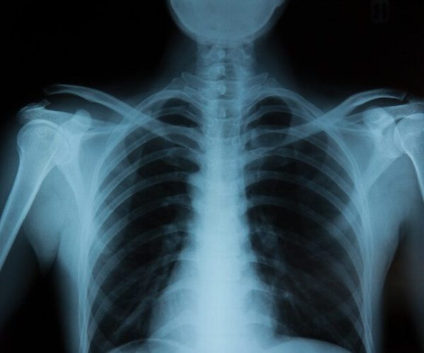 How Do X-rays Work? | Independent Imaging