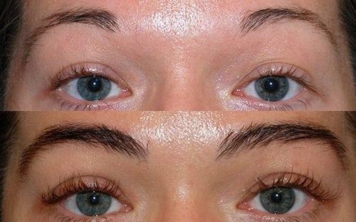Alopecia Areata Eyebrows