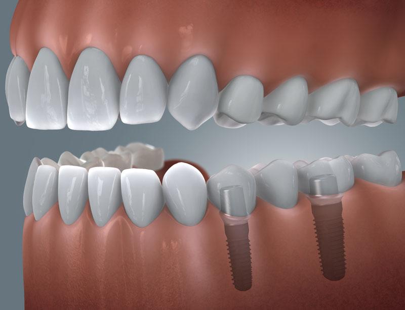 Brücke mit 2 Zahnimplantaten