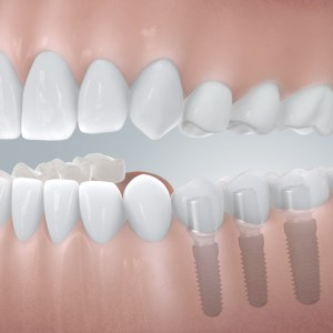 3 Zahnimplantate mit Einzelkronen