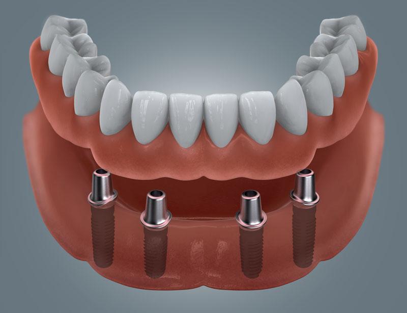 4 Zahnimplantate mit Teleskopen