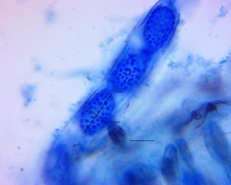 eyelash cup spores. By Richard Jacob