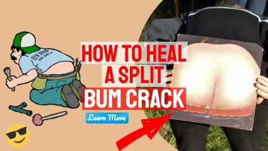 """Featured image with text: """"How to heal a split butt crack""""."""