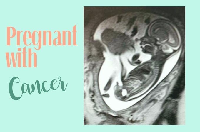 mri image of fetus