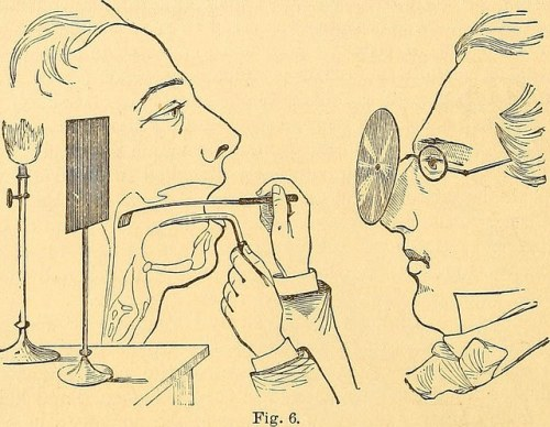 old illustration of doctor peering into patient's throat