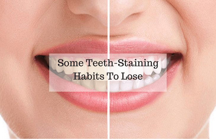 Some Teeth-Staining Habits To Lose