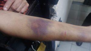 Injuries on Choksi's arms