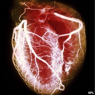 Coração saudável. SPL