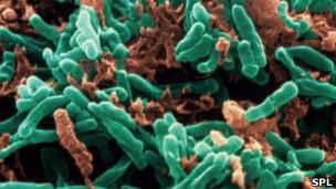 Imagem da bactéria causadora da tuberculose (SPL)
