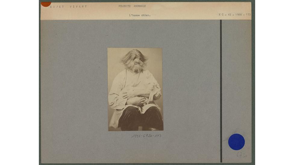 'Homem-cachorro', como era chamado, sofria de hiperpilosidade. Foto: Museu do Quai Branly