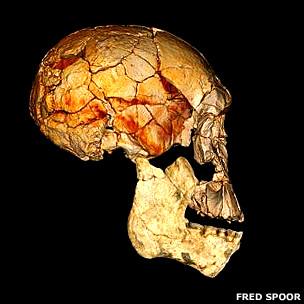 Reconstrucción con tomografía del cráneo 1470 y el nuevo maxilar 6000, ambos encajan perfectamente