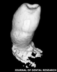 Prototipo de diente que crece desde la raíz de la muela, encontrado por científicos británicos