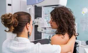 coronavirus could cause 35,000 extra UK cancer deaths