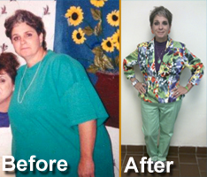 Successful Gastric Bypass Procedure Performed By Dr