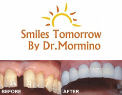 Before and After Smiles Tomorrow