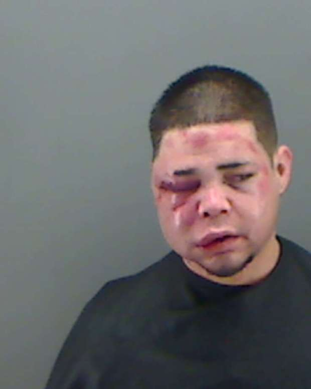 Police arrested Kevin Mitchell Gonzales, 28, after they say he tried to enter a Longview residence on Feb. 1, 2016. He lost a fight with the homeowner before his arrest. Photo: Longview Police Department