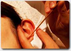 Бизнес идея № 2576. Бизнес по-японски: салоны чистки ушей