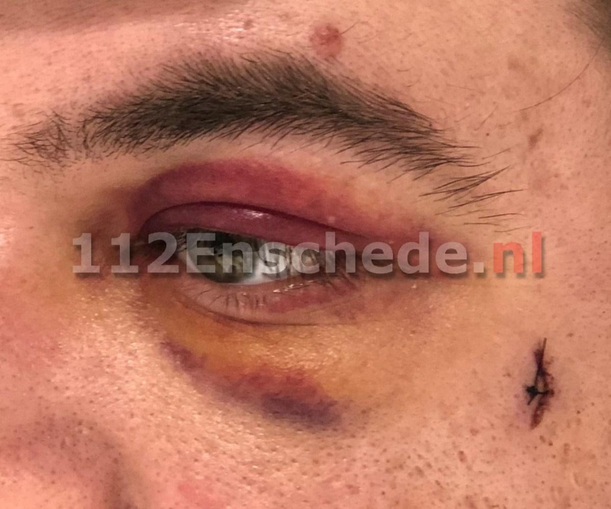 Wandelaar ernstig mishandeld in Enschede, politie zoekt verdachte van poging doodslag