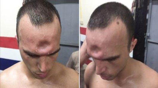 Jonny Betts : sa terrible blessure au crâne en Muay-thaï ! (Vidéo)