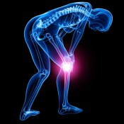 inner knee pain caused by popliteus muscle