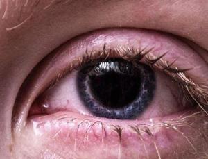Göz rahatsızlıkları pandemi döneminde takipsizlik nedeniyle arttı