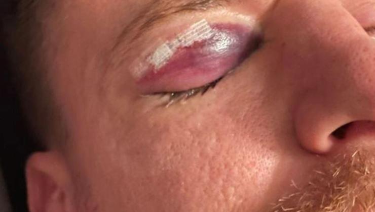serdar aziz'in gözünden yaşadığı sakatlığın son hali korkuttu