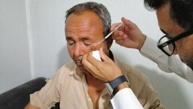 """أحد المصابين باللشمانيا في ليبيا -""""أرشيفية"""""""