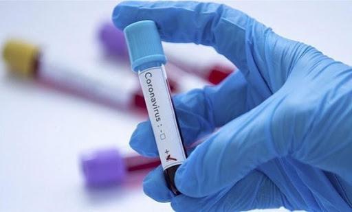 Bilan de coronavirus: 426 nouveaux cas en Algérie