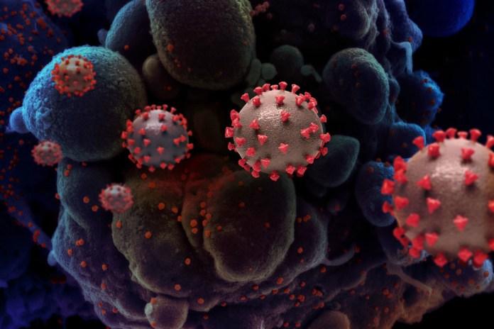 Coronavirus: 125 nouveaux contaminés et 3 décès en Algérie