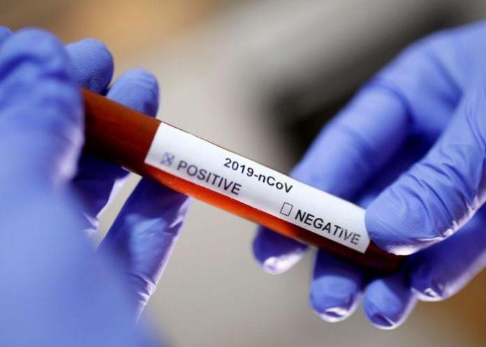 Coronavirus: 385 contaminés et 07 décès en 24h