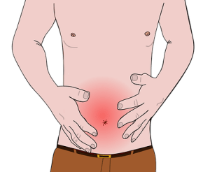Peptic Ulcer from Alcohol and Prednisone Use