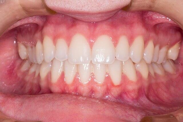 bump on gums
