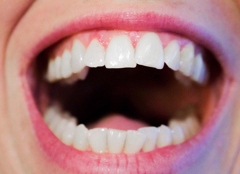 black gums