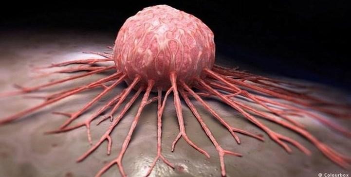 دراسة طبية :البكتيريا المعوية قد تساعد في علاج السرطان
